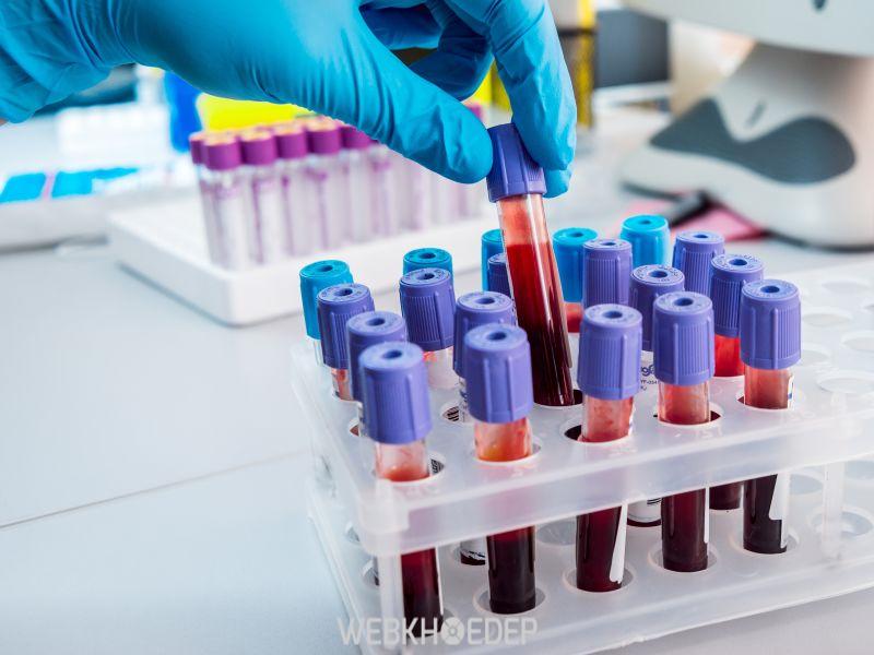 Để chắc chắn được liệu cơ thể có bị mắc phải ung thư máu không người bệnh nên trải qua các phương pháp xác định trên