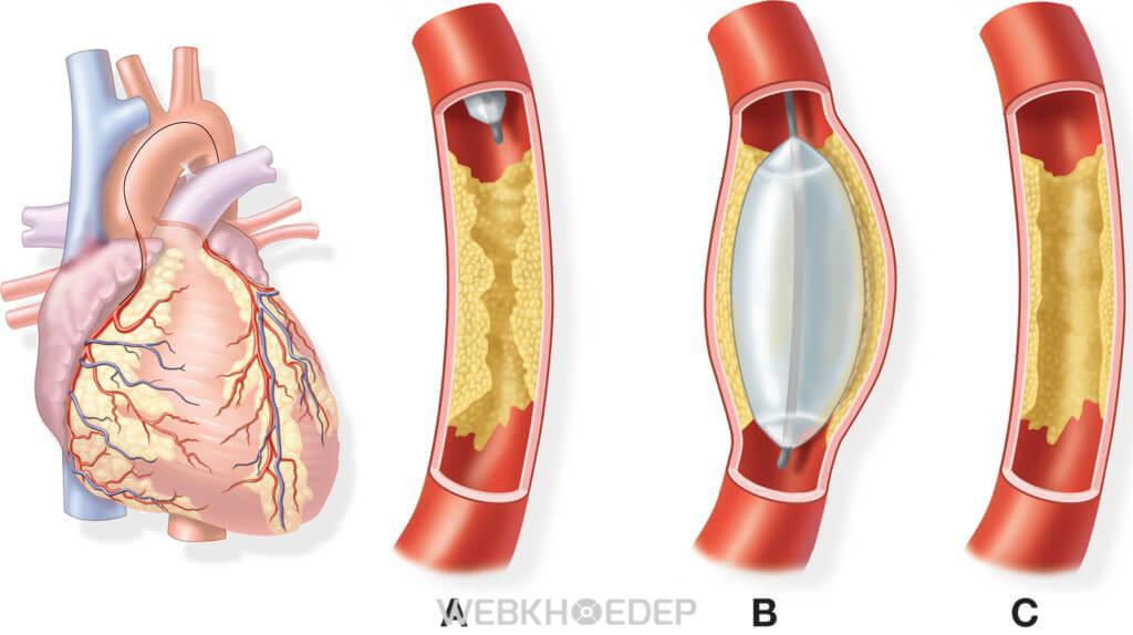 Bệnh động mạch vành do các mảng bám trong mạch máu