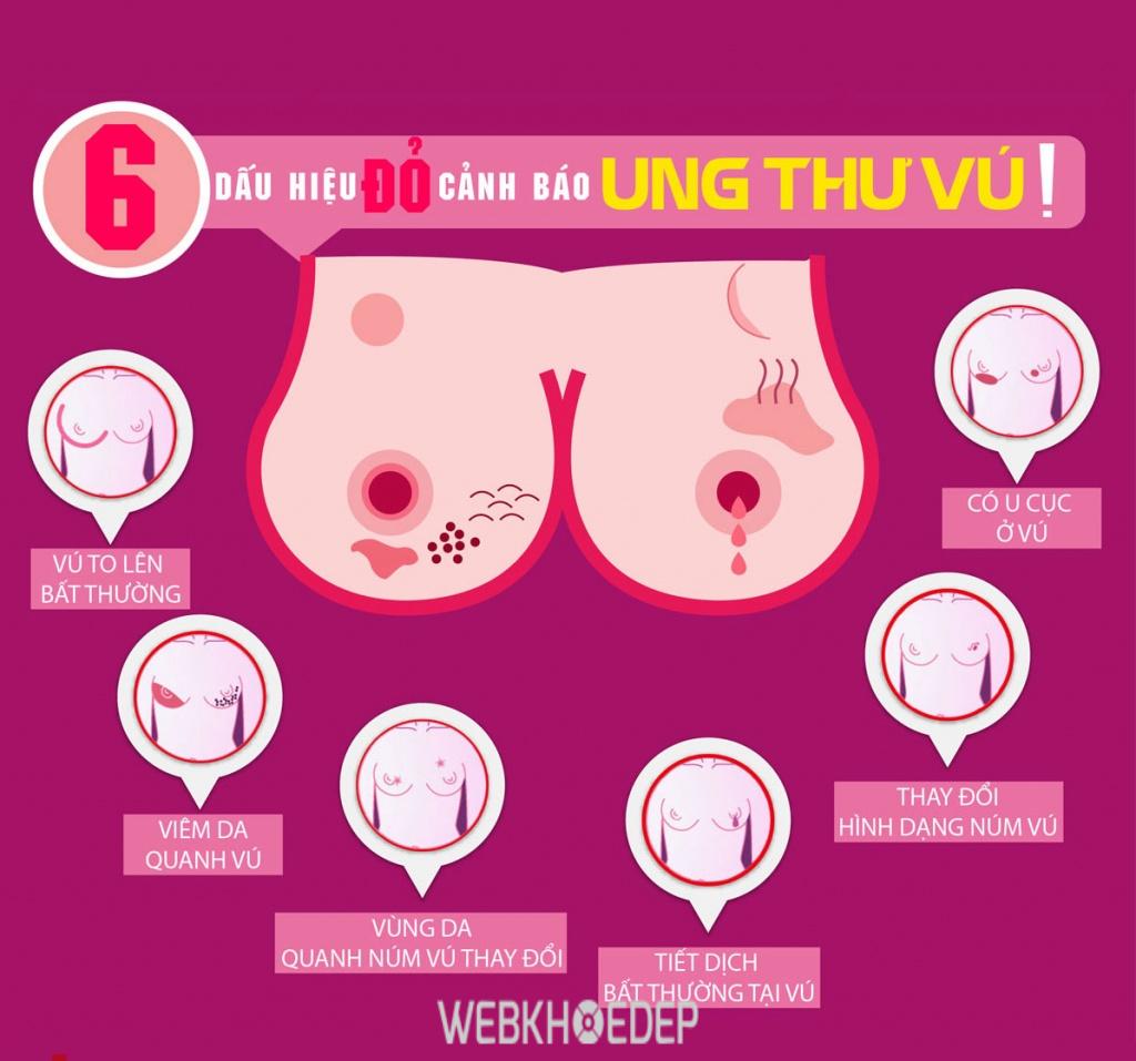 Đi thăm khám ngay khi cơ thể có các biểu hiện của ung thư vú