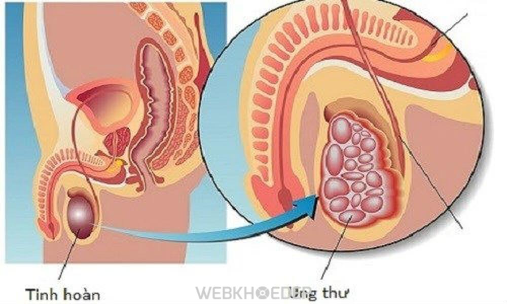 Ung thư tinh hoàn ảnh hưởng đến khả năng sinh sản của nam giới