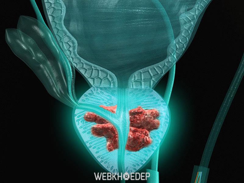 Ung thư tuyến tiền liệt còn gây nên hiện tượng tiểu ra mủ