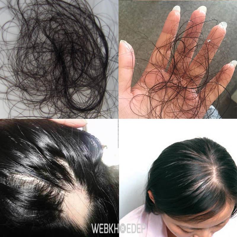 Rụng tóc - biểu hiện của ung thư da đầu