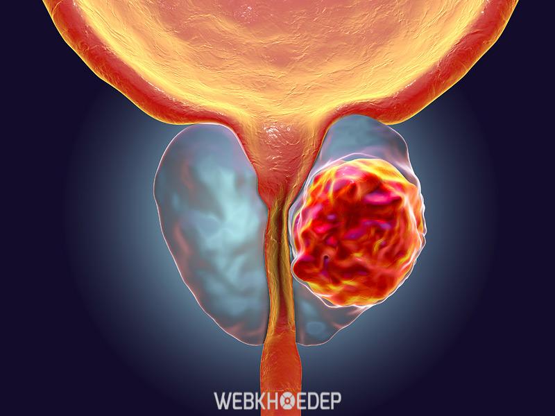 Hình ảnh bệnh nhân ung thư tuyến tiền liệt