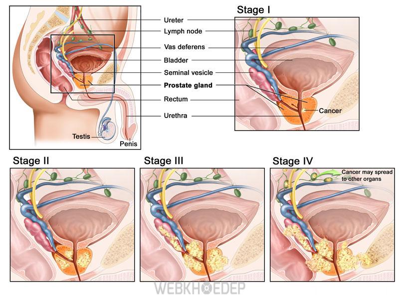 Ung thư tuyến tiền liệt các giai đoạn