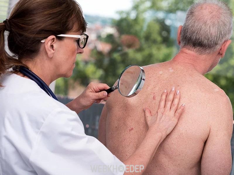 Ung thư da rất nguy hiểm cho người bệnh