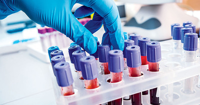 5 lý do để lựa chọn sàng lọc ung thư VIP tại bệnh viện Vinmec