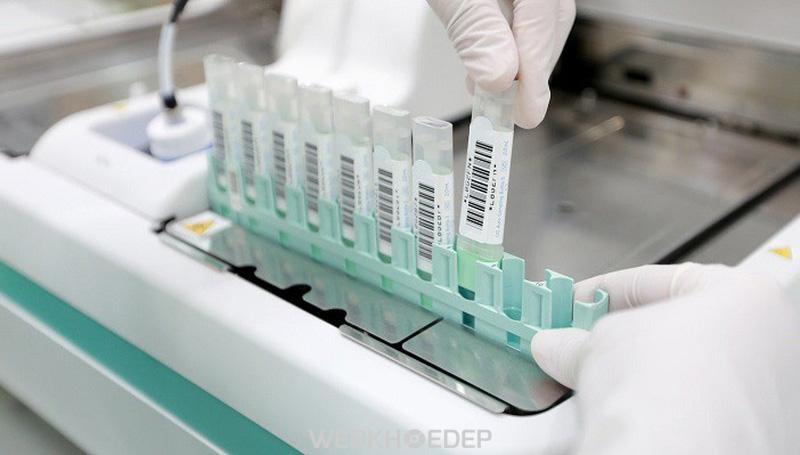 Xét nghiệm tìm máu ẩn trong phân miễn dịch hóa học - iFOBT