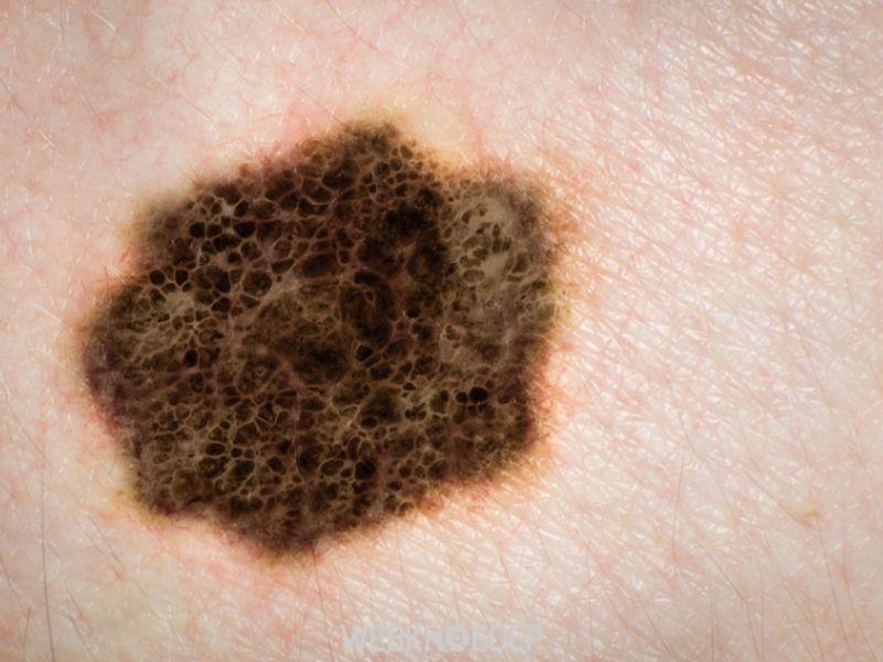 Những vết, nốt có màu bất thường trên da chính là dấu hiệu dễ nhận biết u hắc tố