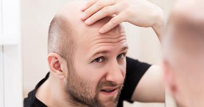 9 nguyên nhân gây rụng tóc ở nam giới và 10 cách kích thích mọc nhanh