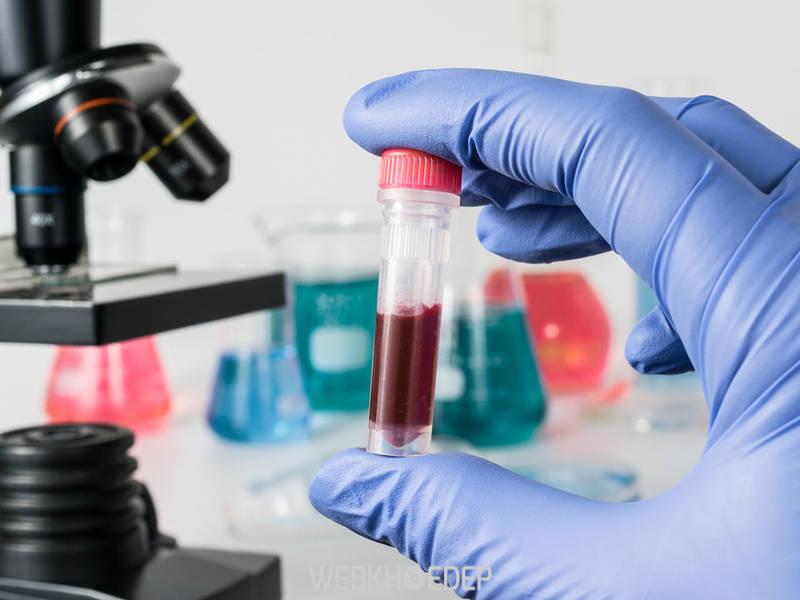 Tìm máu ẩn trong phân là xét nghiệm đầu tiên để kiểm tra xem bạn có dương tính với bệnh hay không
