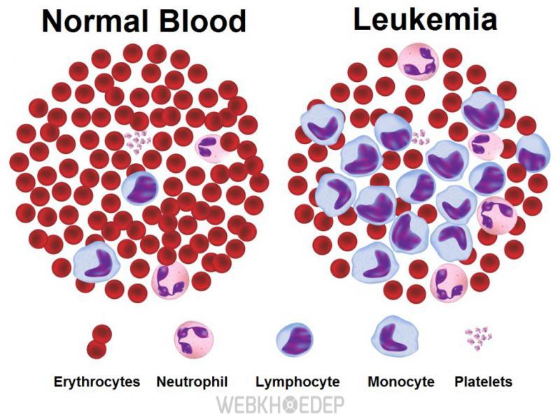 Bệnh bạch cầu mãn tính là một dạng ung thư từ một số tế bào sản sinh máu của tủy xương (Nguồn: medicalnewstoday.com)