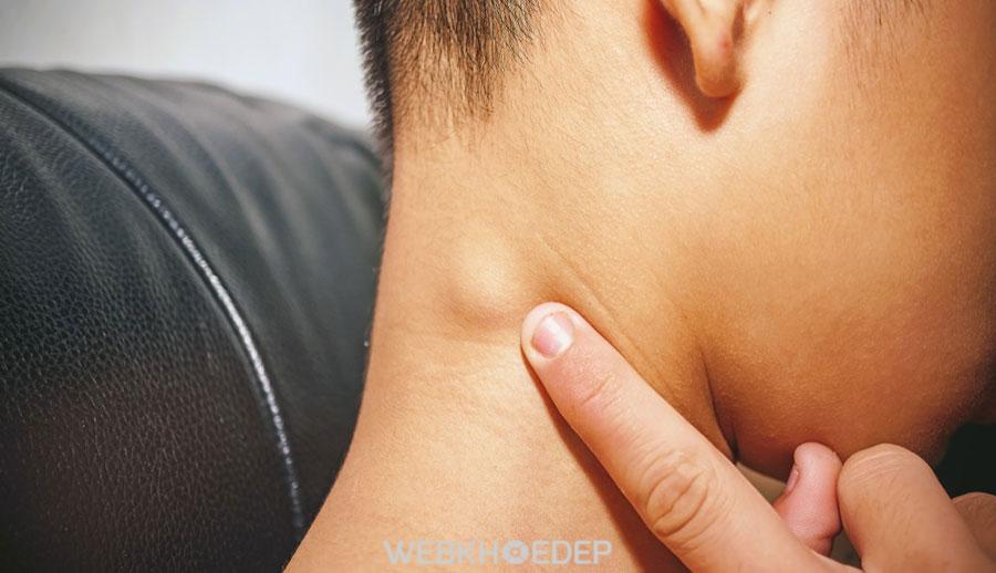 Viêm hạch bạch huyết gây sưng đau (Nguồn: nhathuocthanthien.com.vn)