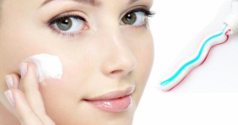 Cách trị mụn hiệu quả bất ngờ bằng kem đánh răng