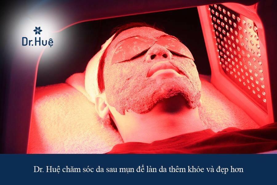 Dr. Huệ địa chỉ trị mụn quanh miệng và cằm cho nam giới an toàn tại TPHCM