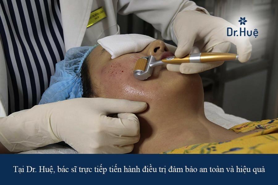 Bác sĩ đưa ra phác đồ trị mụn quanh miệng và cằm cho nữ giới theo chuẩn y khoa