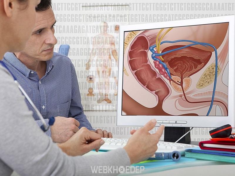 Đàn ông trên 50 tuổi dễ mắc bệnh ung thư tuyến tiền liệt