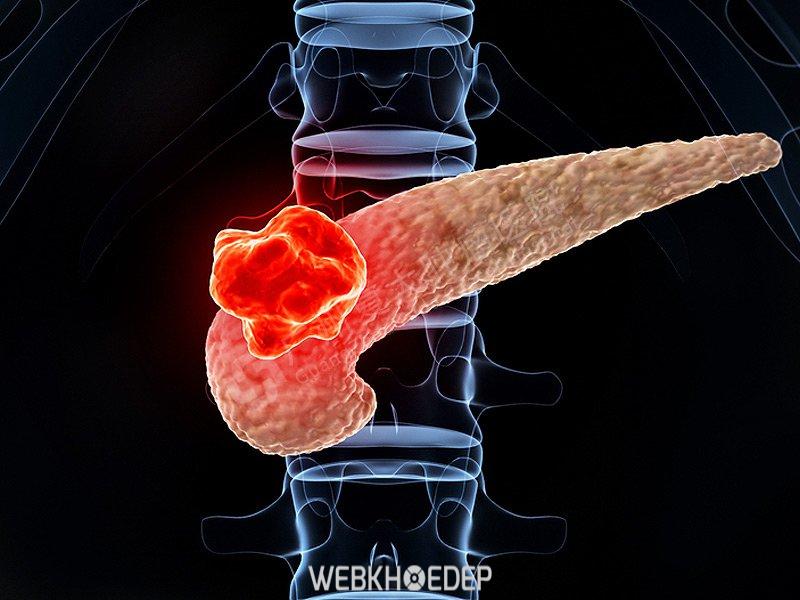 Ung thư tuyến tụy sẽ có thể có kết quả điều trị tốt hơn nếu được phát hiện sớm bằng các phương pháp tầm soát chất lượng