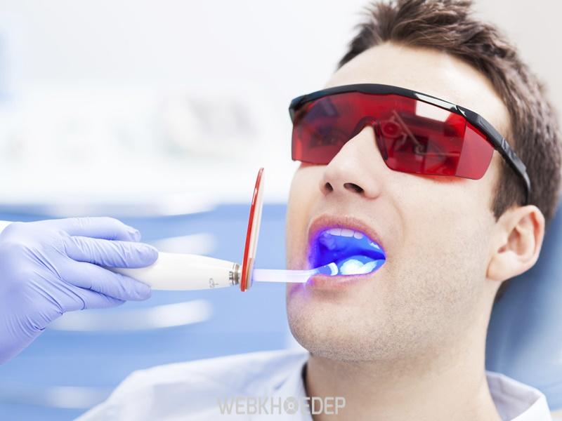 Lựa chọn phương pháp tẩy răng phù hợp với tình trạng răng của mình
