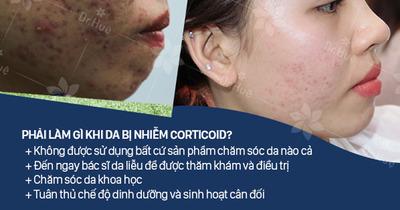 Da bị nhiễm corticoid phải làm sao có chữa được không?