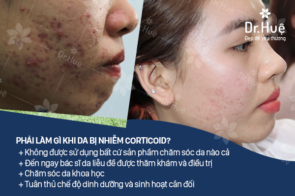 Nên làm gì khi da mặt bị nhiễm Corticoid