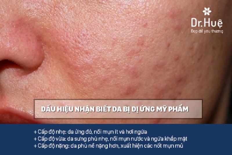 Dấu hiệu nhận biết da bị dị ứng mỹ phẩm
