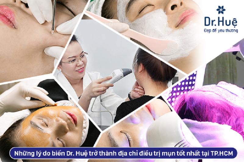 5 lý do biến Dr. Huệ trở thành địa chỉ điều trị mụn tốt nhất tại TP.HCM