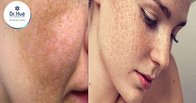 Độ tuổi bị nám da mặt thường nằm trong khoảng nào