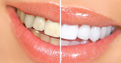 Mẹo giúp răng luôn trắng sáng
