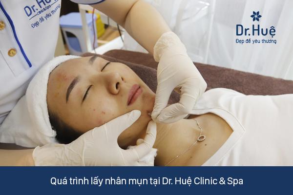 Quy trình lấy nhân mụn chuẩn y khoa tại Dr.Huệ Clinic & Spa