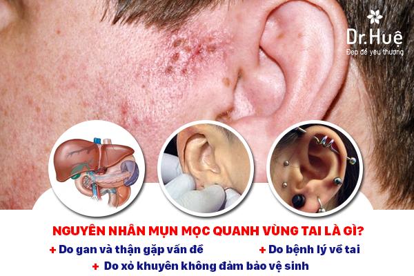 Tại sao mụn mọc quanh tai