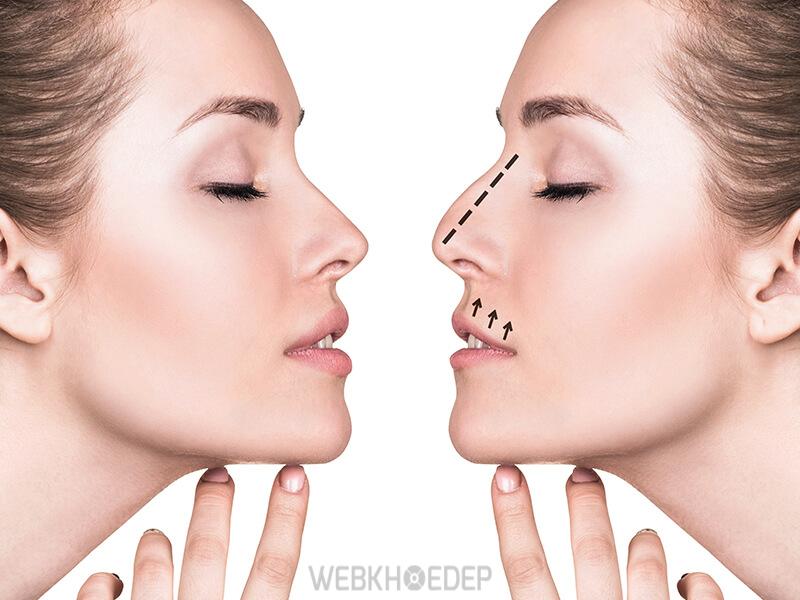 Nâng mũi bằng chỉ collagen cho khuôn mũi chuẩn đẹp