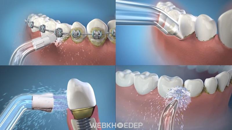 Máy tăm nước đặc biệt phù hợp với người niềng răng, phẫu thuật răng