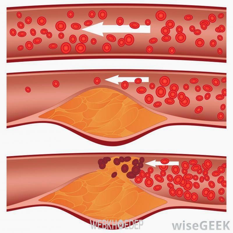 Sử dụng sản phẩm nghệ Nano hỗ trợ giảm lượng Cholesterol