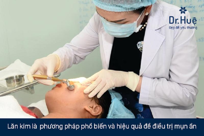 Cách chữa trị mụn ẩn 2 bên má tốt nhất tại Dr. Huệ Clinic & Spa