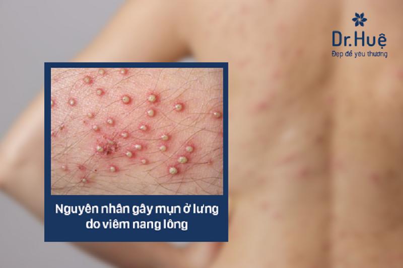 Nguyên nhân gây mụn ở lưng do viêm nang lông