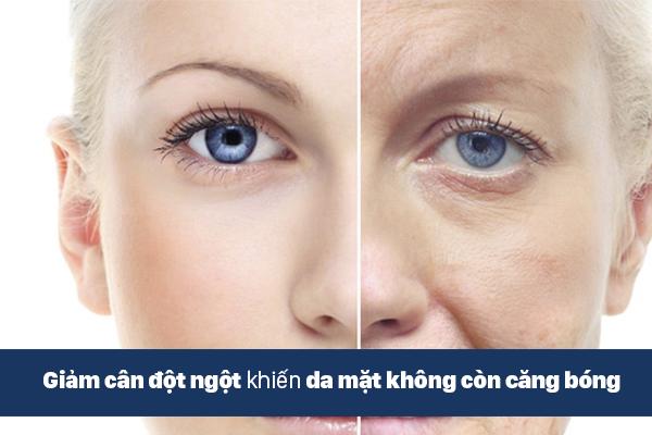 Nguyên nhân chảy xệ da mặt vì giảm cân không đúng cách