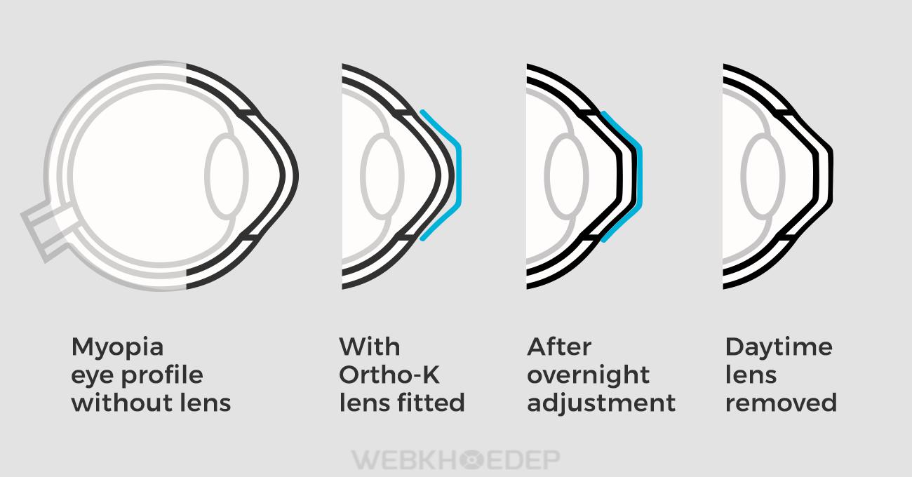 Kính Ortho-K với cơ chế đặc biệt, điều chỉnh giác mạc vào mỗi đêm