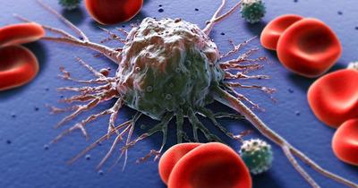 Tế bào ung thư là gì, thích ăn gì, di căn bằng cách nào, có chết không
