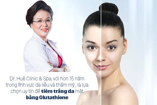 Dr. Huệ Clinic & Spa địa chỉ tiêm trắng da cho da đen bẩm sinh hiệu quả nhất