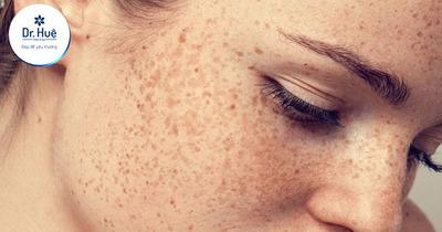 [Tư Vấn] Phân biệt tàn nhang và nốt ruồi khác nhau như thế nào