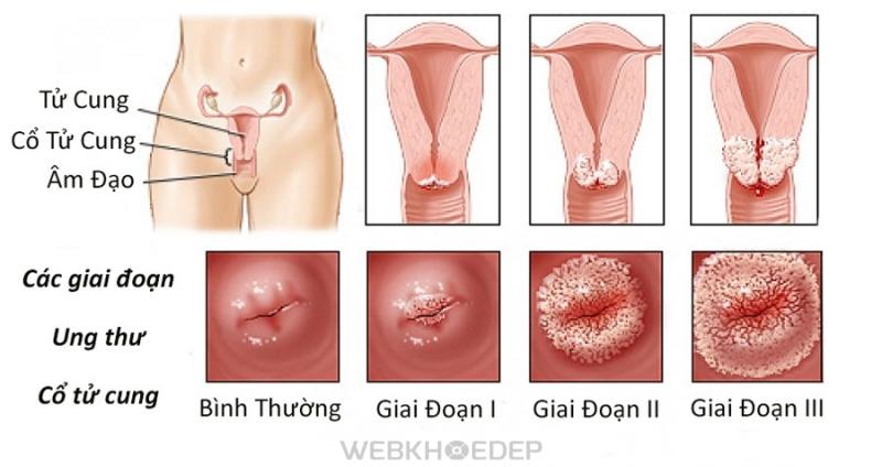Các giai đoạn phát triển của bệnh ung thư cổ tử cung