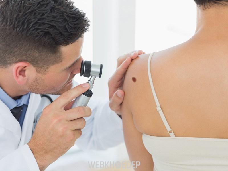 Ung thư da sẽ giảm được nguy hiểm nếu phát hiện và điều trị sớm