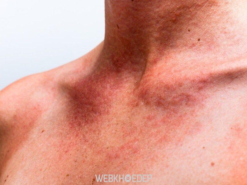 Ung thư da có thể bắt đầu từ những tổn thương nhỏ
