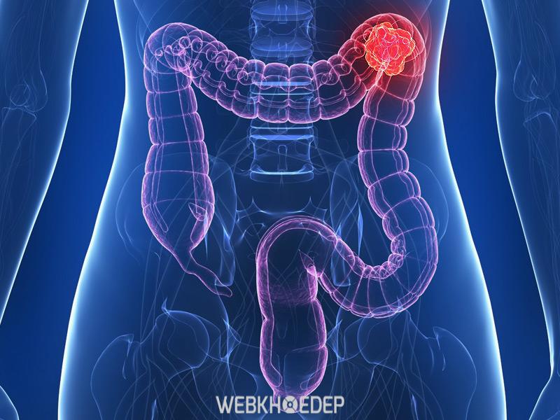 Ung thư đại tràng do Polyp hình thành trong ruột già