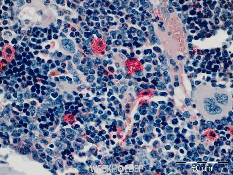 Ung thư máu di căn là một loại ung thư nguy hiểm đến sức khỏe và tính mạng của người bệnh