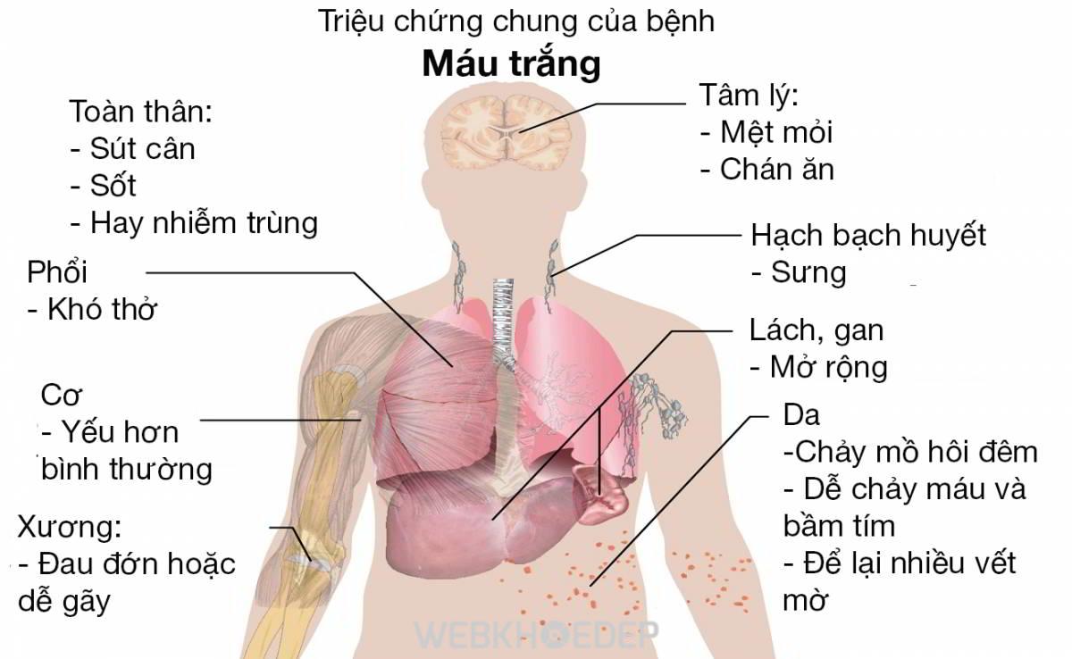 Các triệu chứng của bệnh ung thư máu chỉ xuất hiện ở giai đoạn bệnh cuối