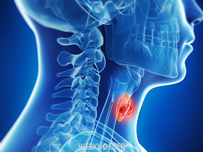 Ung thư tuyến giáp khi di căn có chữa được không?