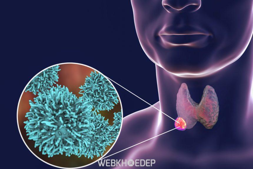 Ung thư tuyến giáp sống được bao lâu
